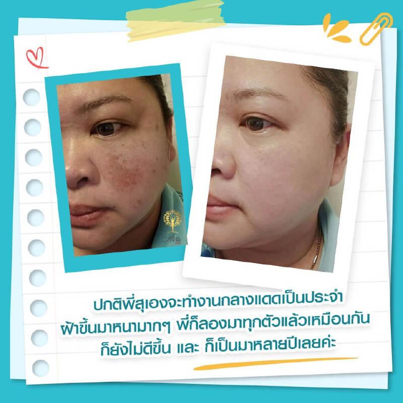 Sakana-Collagen-case-review-02